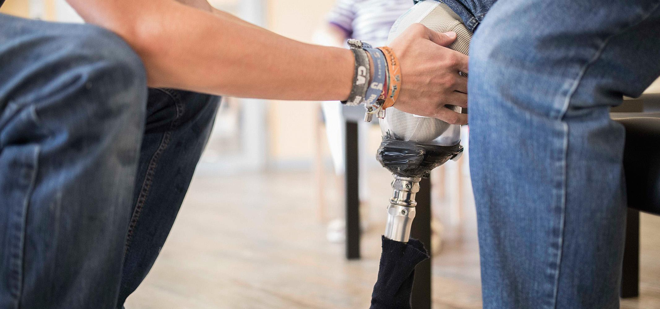 APT Prothesen anpassen nach Maß