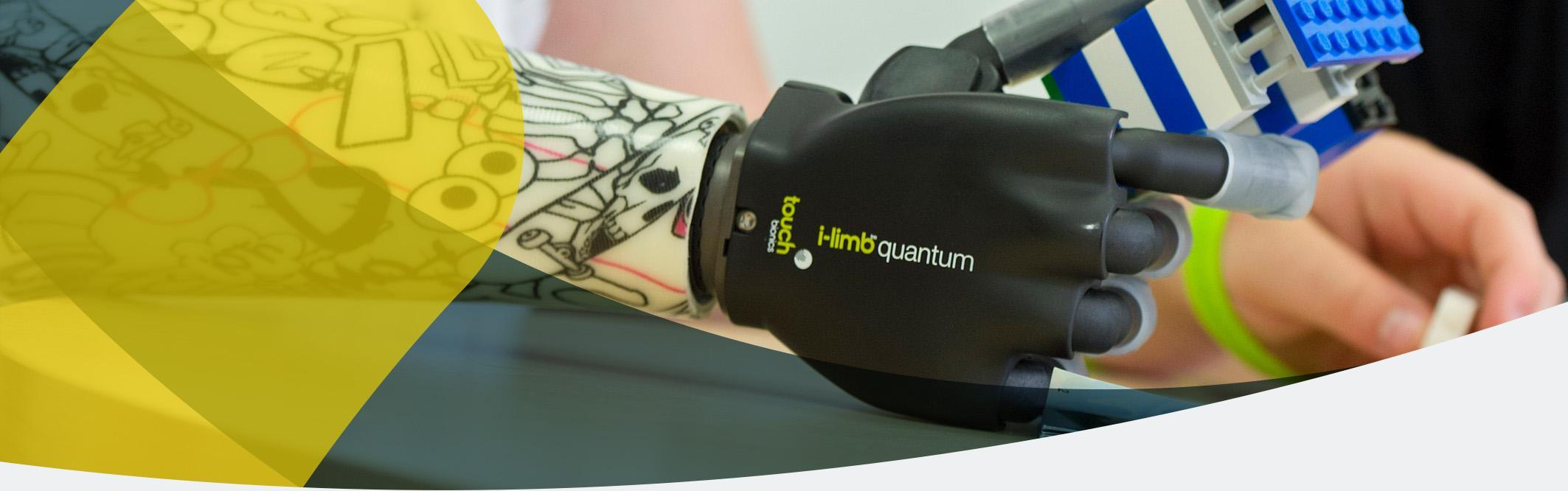 Armprothesen von APT - Überblick und Amputationshöhen