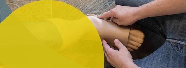 APT Prothesen mit Orthopädiemeistern – A Perfect Team