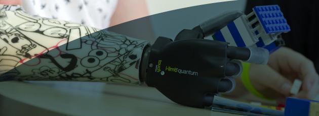 Armprothesen - Überblick und Amputationshöhen